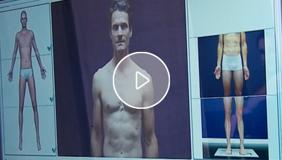 Video: Der Fullbody Scan zur Muttermalkontrolle bei skinmed