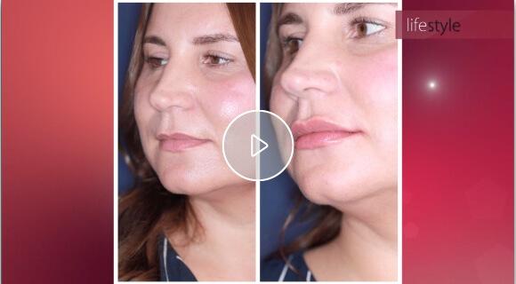 (Video: Sehen Sie im Video Ablauf und Ergebnis von Lippenunterspritzungen bei skinmed)