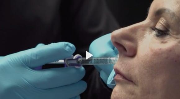puls srf skinmed lippen unterspritzen