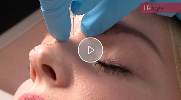 Video: Nasenkorrektur ohne OP mit Hyaluronsäure bei skinmed (Ausschnitt aus dem TV-Magazin Lifestyle)