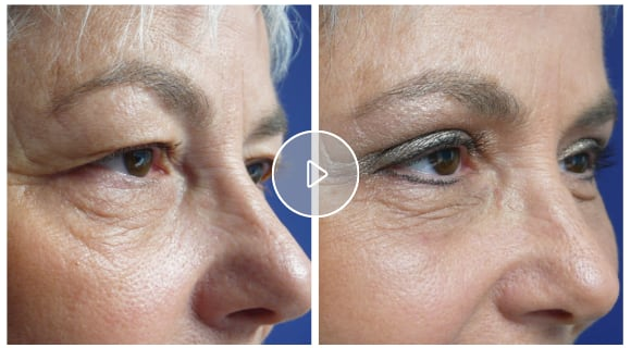(Video: Begleiten Sie Ursula Rohrer bei ihrer Augenlidstraffung in der skinmed Klinik.)