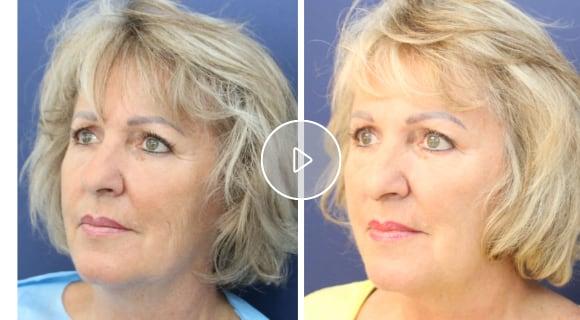 (Video: Fadenlifting – «Lifestyle» begleitete eine Patientin bei skinmed)