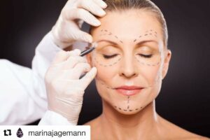 Marina Jagemann facelift skinmed