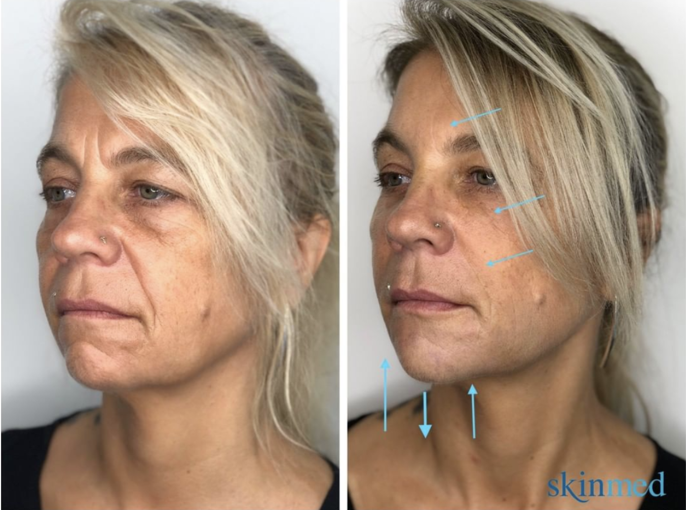 Vorher-Nachher Gesichtsverjüngung mit Hyaluron