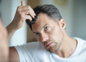 Mann mit Haarverlust